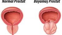 Prostat Nedir ? Belirtileri Nelerdir ?